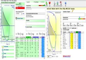 Le differenze tra gli spirometri MIR Minispir e MIR Minispir Light a livello di valori spirometrici riportati dopo il test